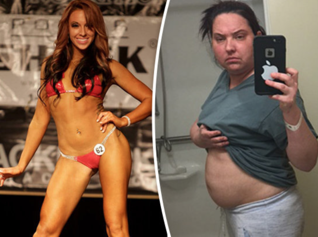 A Stunning Woman Reveals The Devastating Secret Behind Her Weight